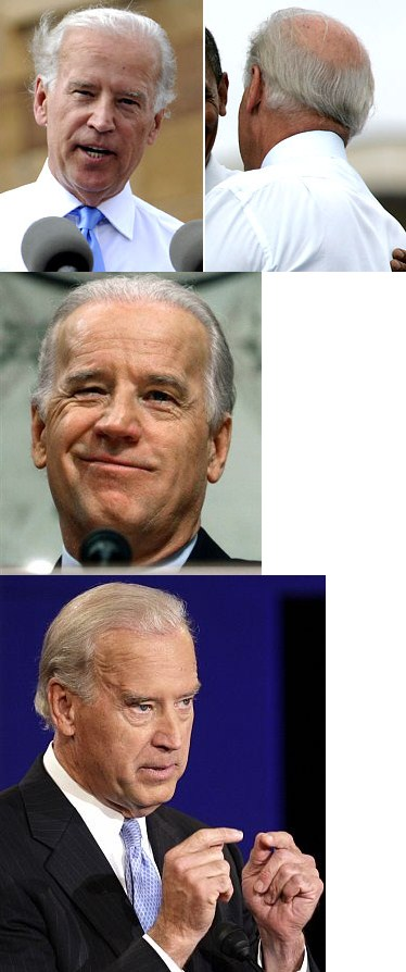 joe biden hair transplant