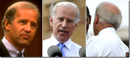 joe biden hair transplant 02