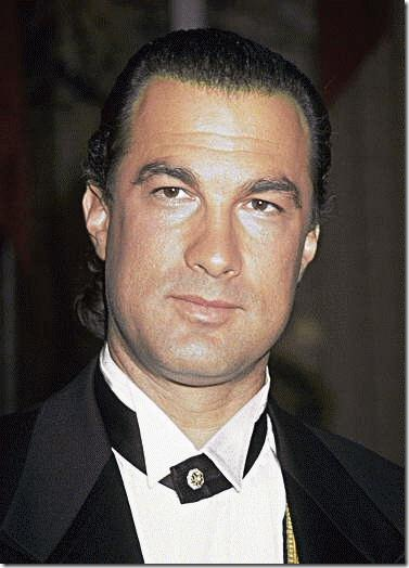 steven seagal hair transplant 02