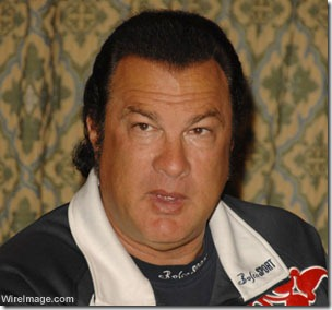 steven seagal hair transplant 03