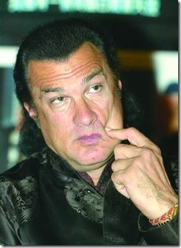 steven seagal hair transplant 07