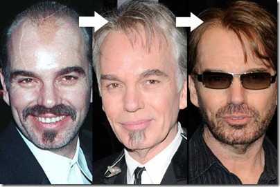 billy bob thornton hair transplant 01