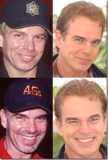 billy bob thornton hair transplant 02