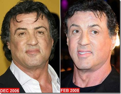Celebrity hair transplant photos after 10