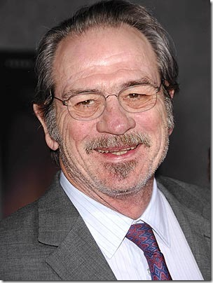 tommy lee jones hair transplant 02