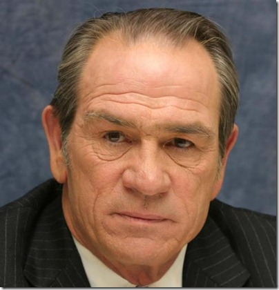 tommy lee jones hair transplant 04