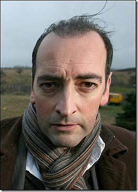 alistair mcgowan hair transplant 03