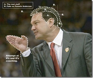 bill self hair transplant 06