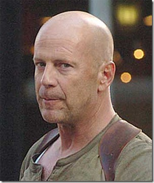 bruce willis hair transplant - 04
