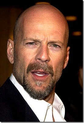 bruce willis hair transplant - 05