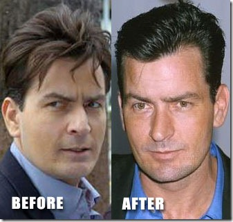 charlie sheen hair transplant - 06