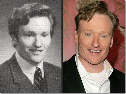conan o brien hair transplant 01
