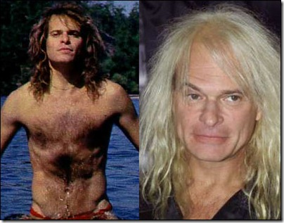 david lee roth hair transplant - 03