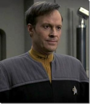 dwight schultz hair transplant 01