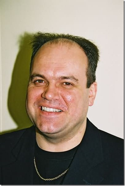 shaun williamson hair transplant 02