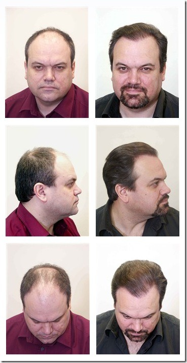 shaun williamson hair transplant 05
