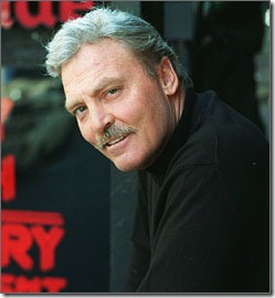 stacy keach hair transplant - 02