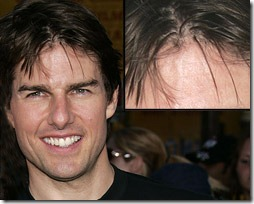tom cruise hair transplant 05