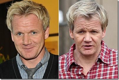 gordon ramsay hair transplant - before after
