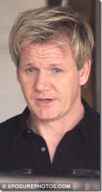 gordon ramsay hair transplant - before